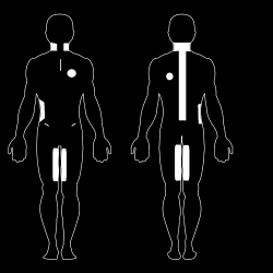Medical body map of Nath Voth's scars.